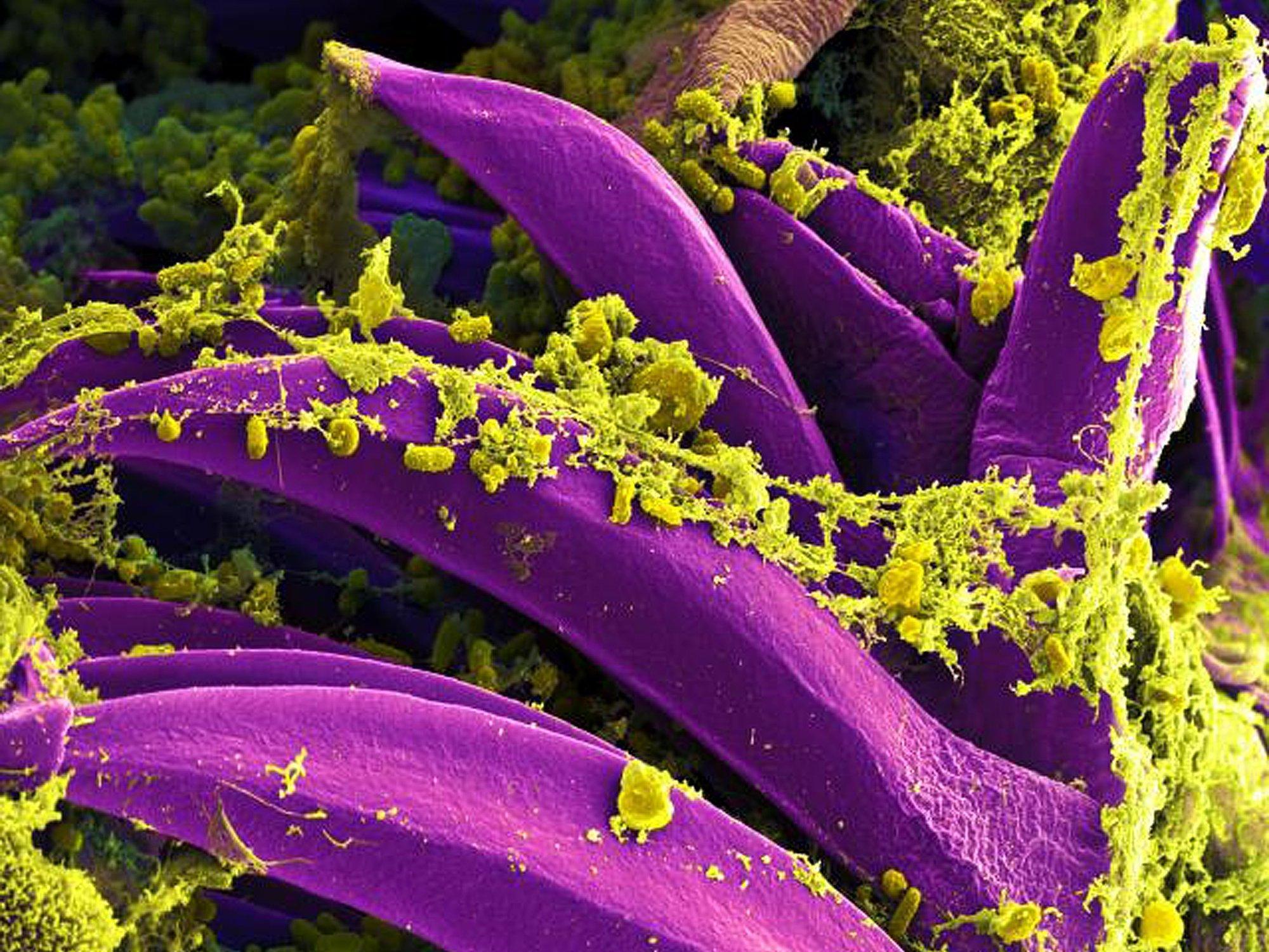 Периодическая болезнь защищала средиземноморцев от чумы