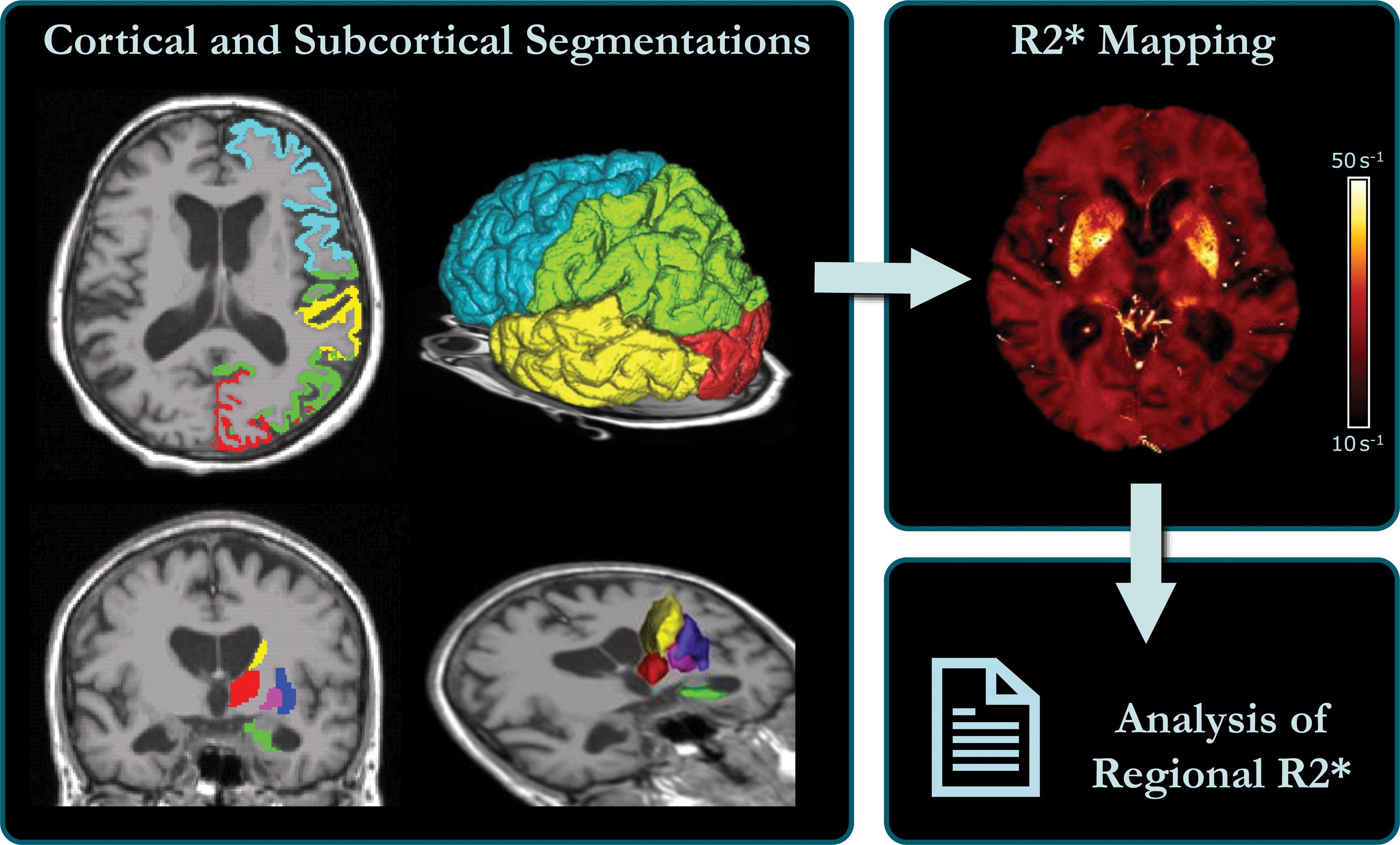 Накопление железа в коре мозга расскажет о болезни Альцгеймера