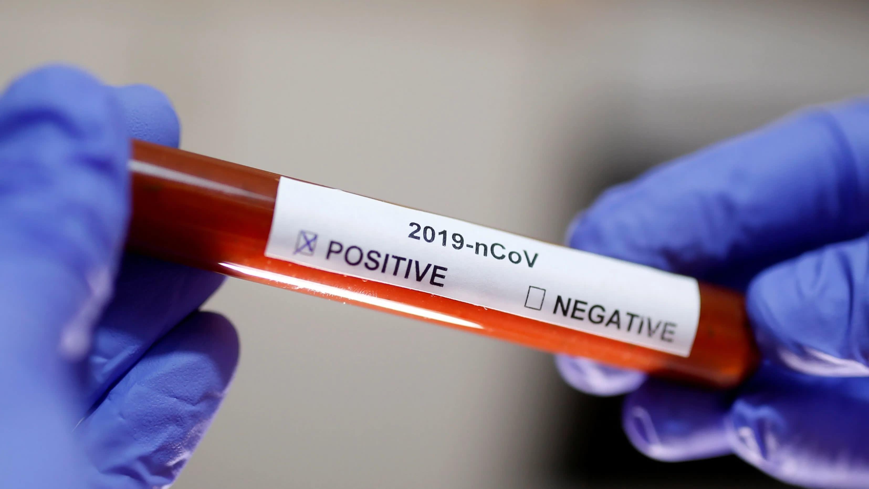 Коронавирус нашли в крови донора, симптомы болезни у которого исчезли 40 дней назад