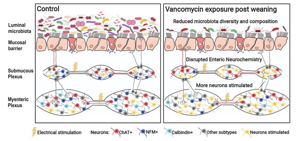 Прием антибиотиков в детстве связали с изменениями микробиома кишечника и развитием метаболических заболеваний
