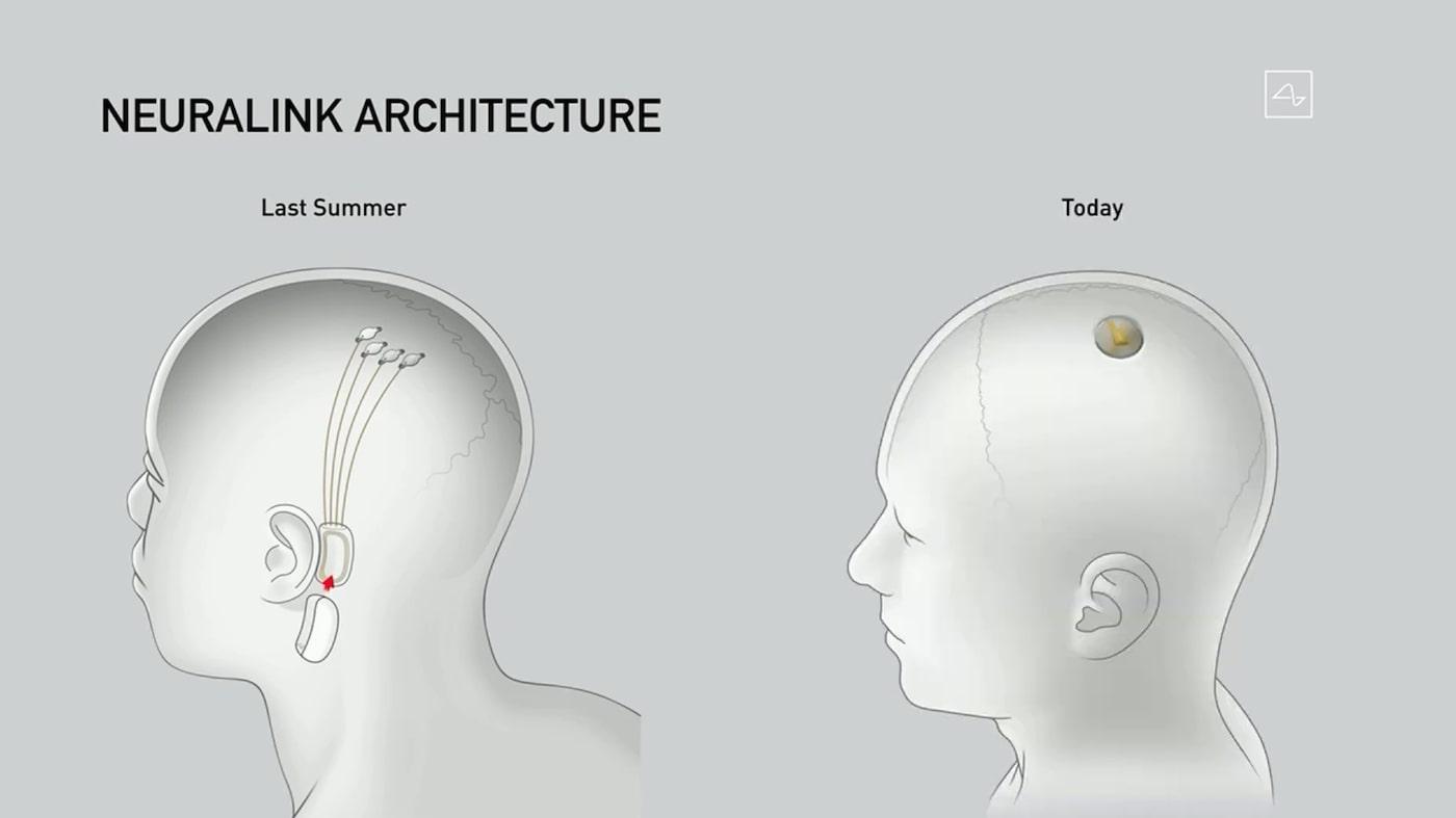 Neuralink: радужные перспективы или сомнительное будущее?