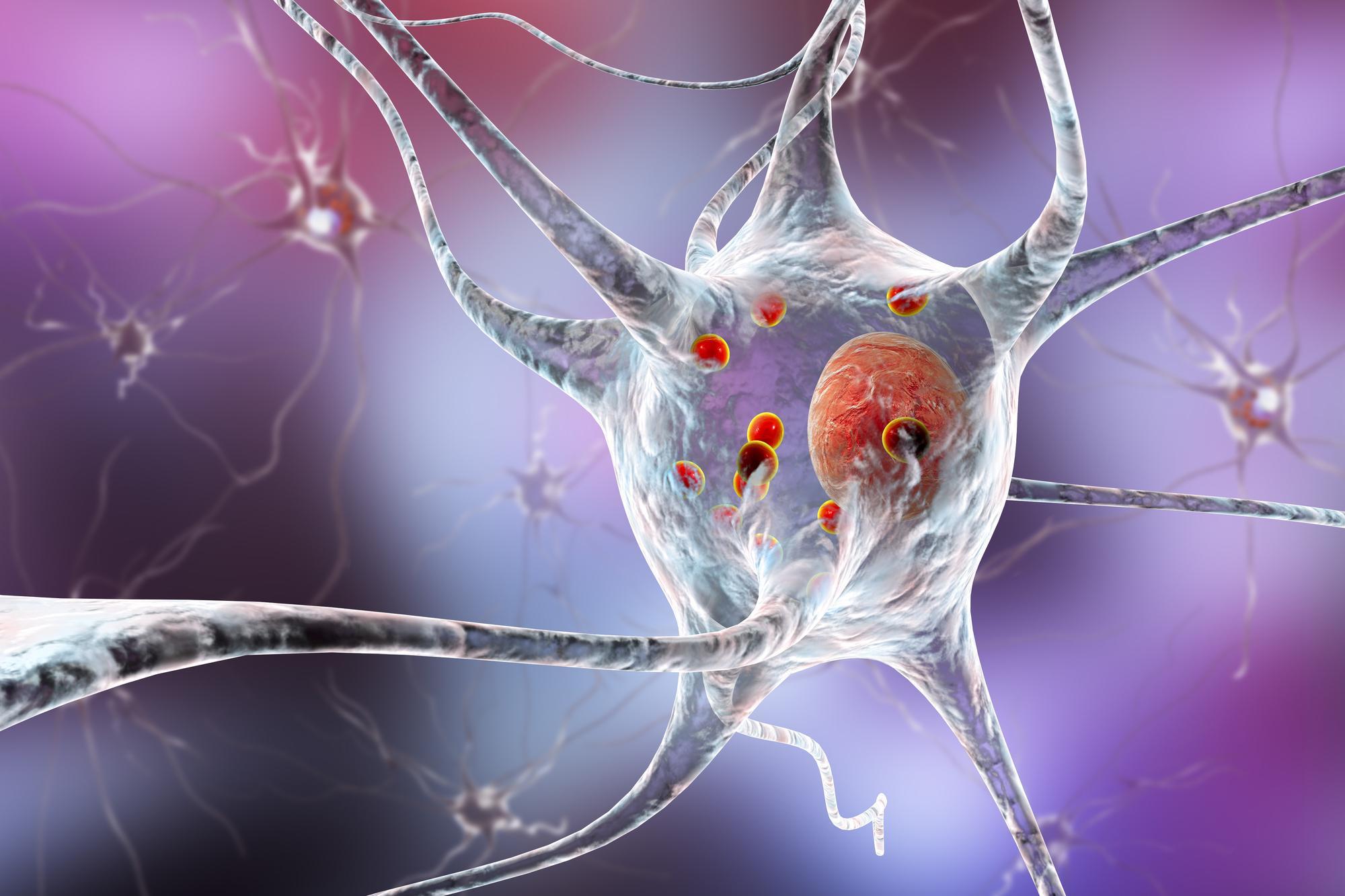Взболтать, но не смешивать: «белковые капли» в нейронах — возможный ключ к объяснению механизмов нейродегенерации