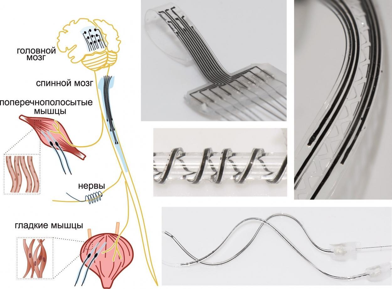 Мягкие нейроимпланты напечатали на 3D-принтере