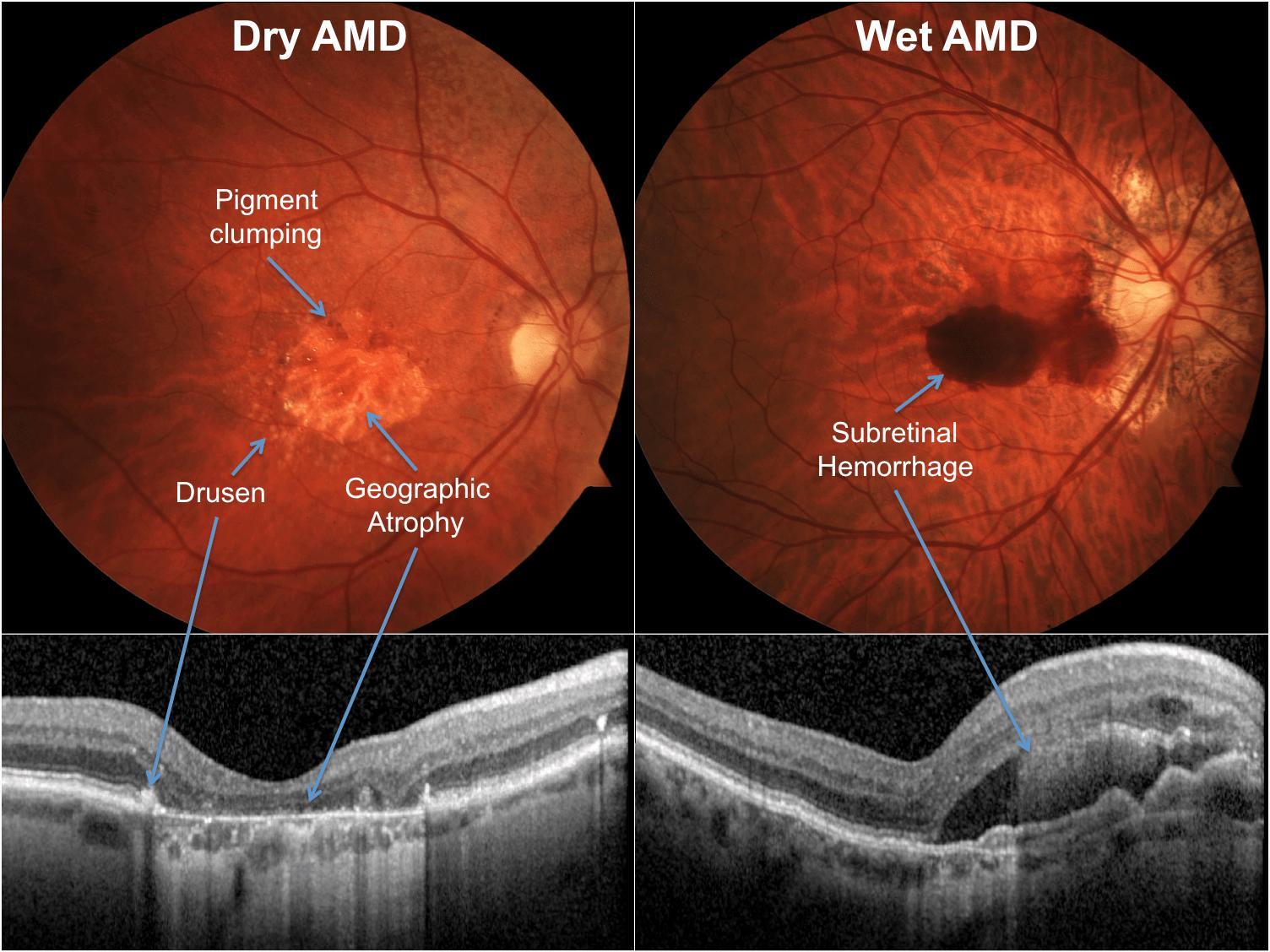 Болезни глаз связали с повышенным риском развития деменции