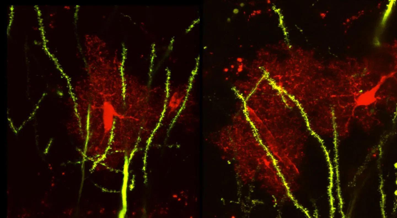 Без тормозов: найден белок, связанный с нарушениями поведения и припадками