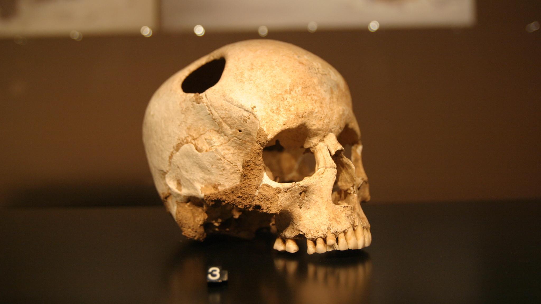 При черепно-мозговой травме спасёт дыра в черепе