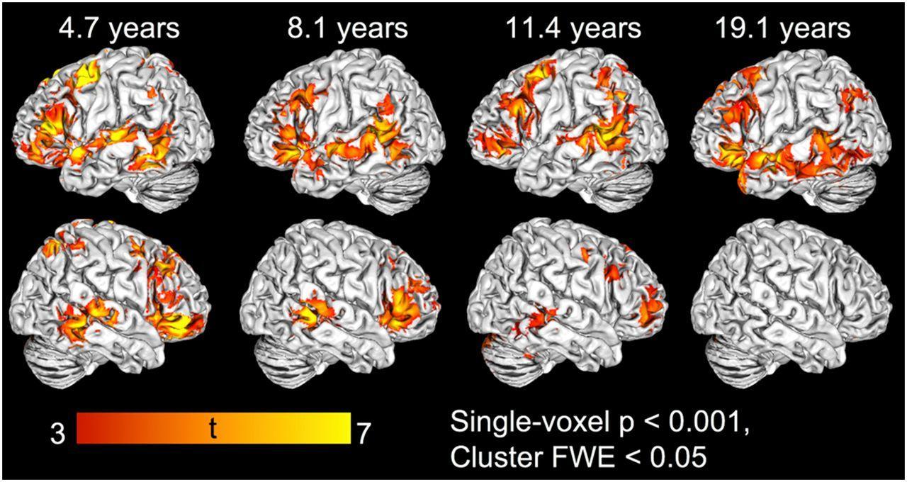 Дети используют обе половины мозга для понимания и изучения языка