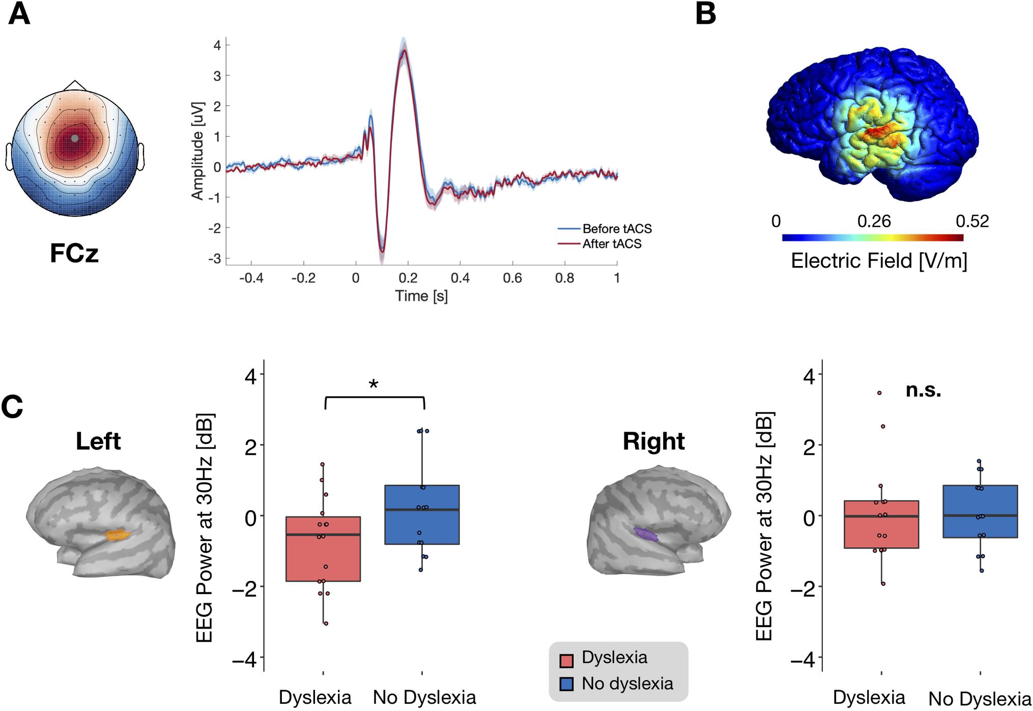 Транскраниальная стимуляция переменным током на время смягчила дислексию