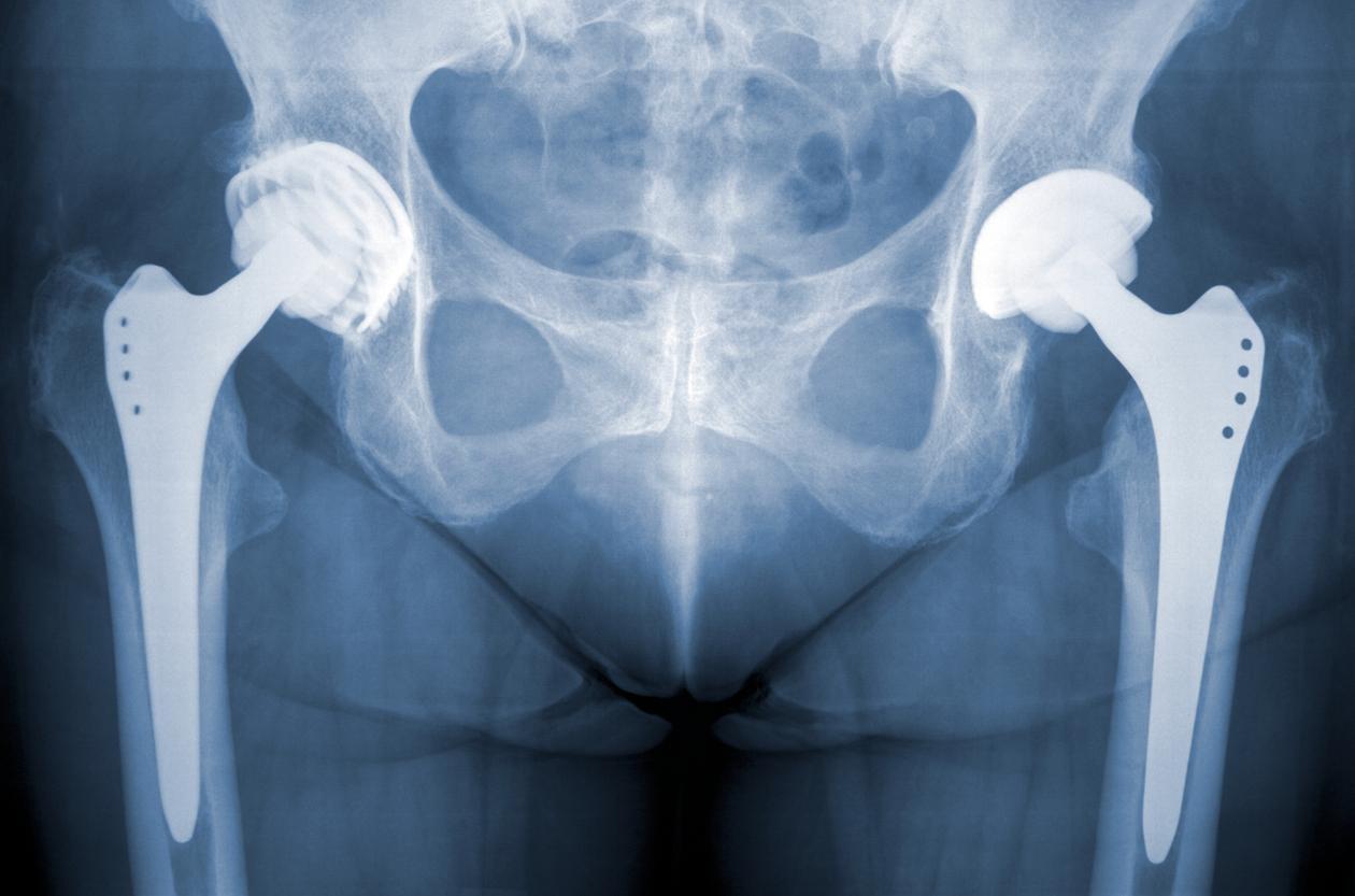 Типы эндопротезов тазобедренного сустава