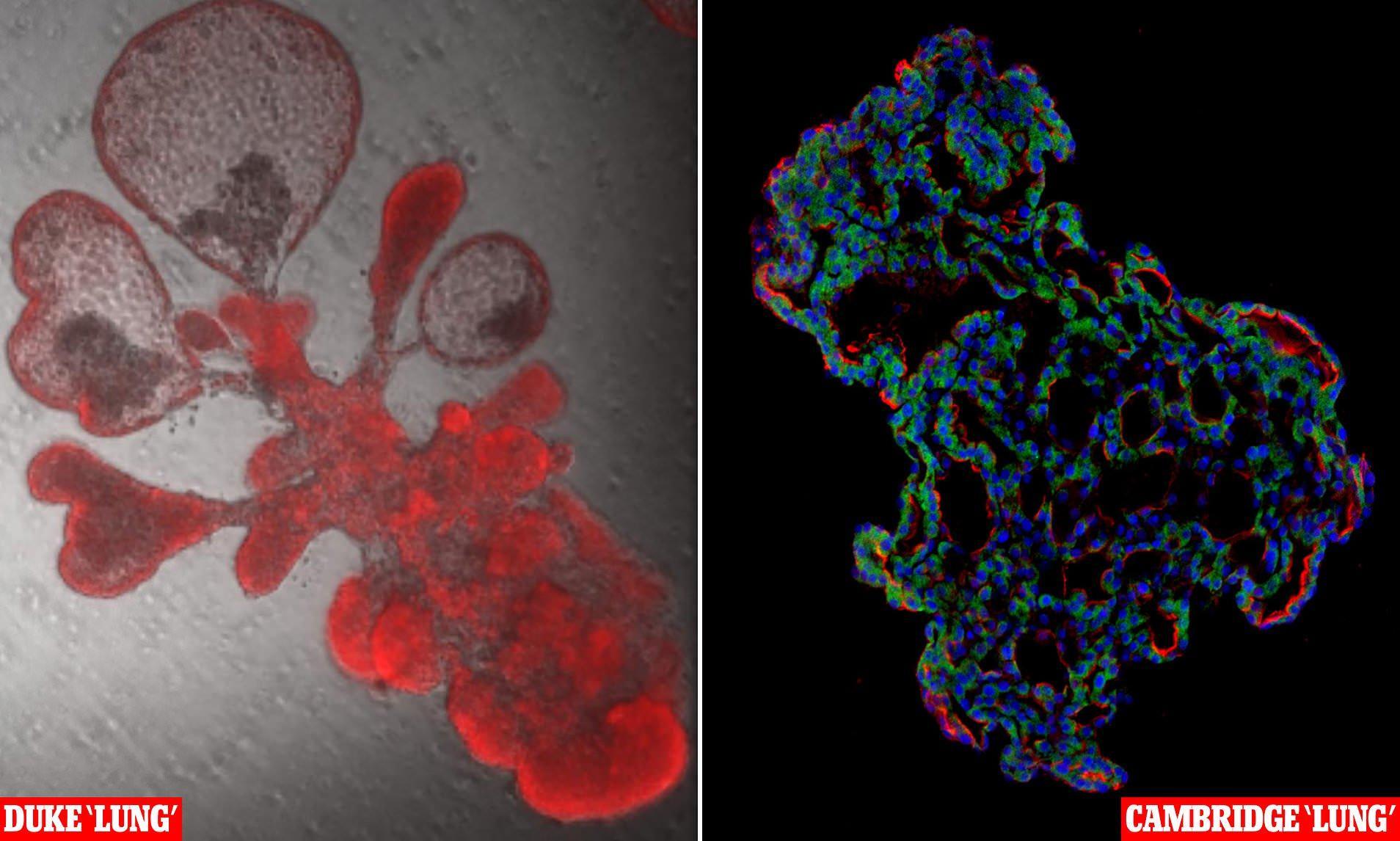 Искусственные мини-органы помогли ученым увидеть, как вирус SARS-CoV-2 повреждает легкие