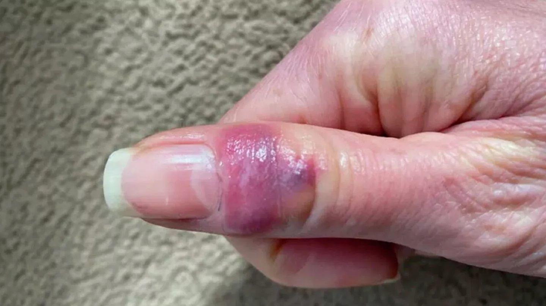 Акрально-пурпурные поражения, похожие на обморожение, чрезвычайно часто наблюдаются у детей и молодых людей, болеющих Covid-19