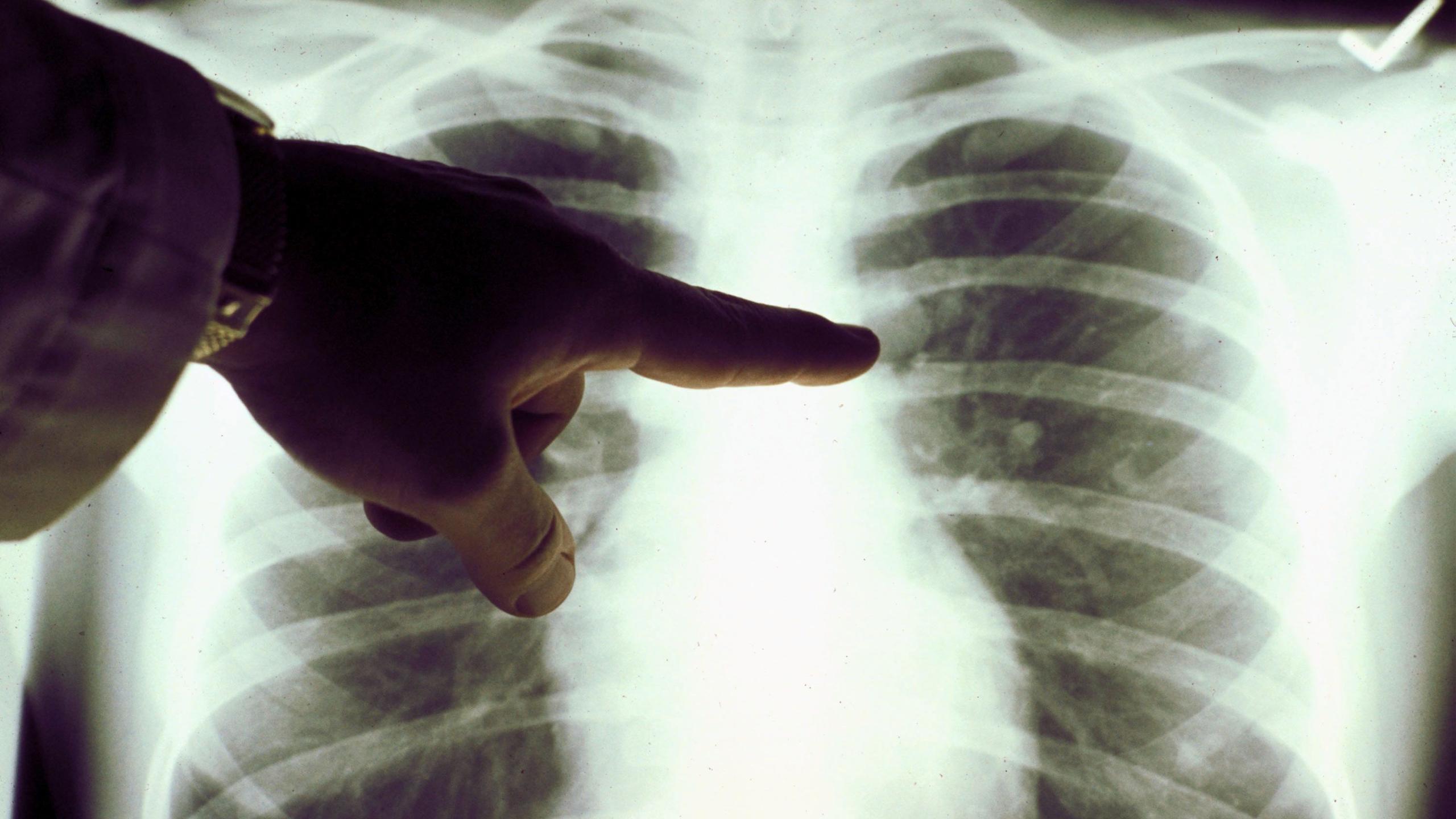 Онколог Давид Хаятт: «Профилактика рака заключается в первую очередь в устранении канцерогенов»