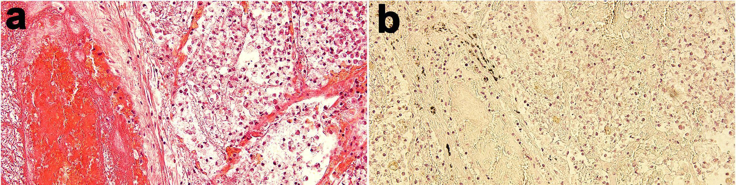 Медики подтвердили способность коронавируса проникать в мозг