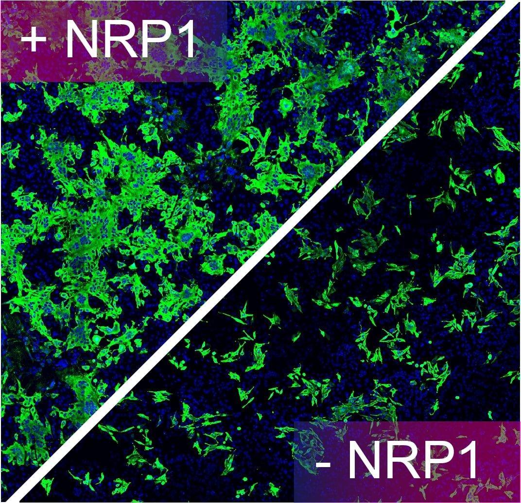 Подтверждено наличие еще одного пути, по которому коронавирус SARS-CoV-2 проникает в клетки