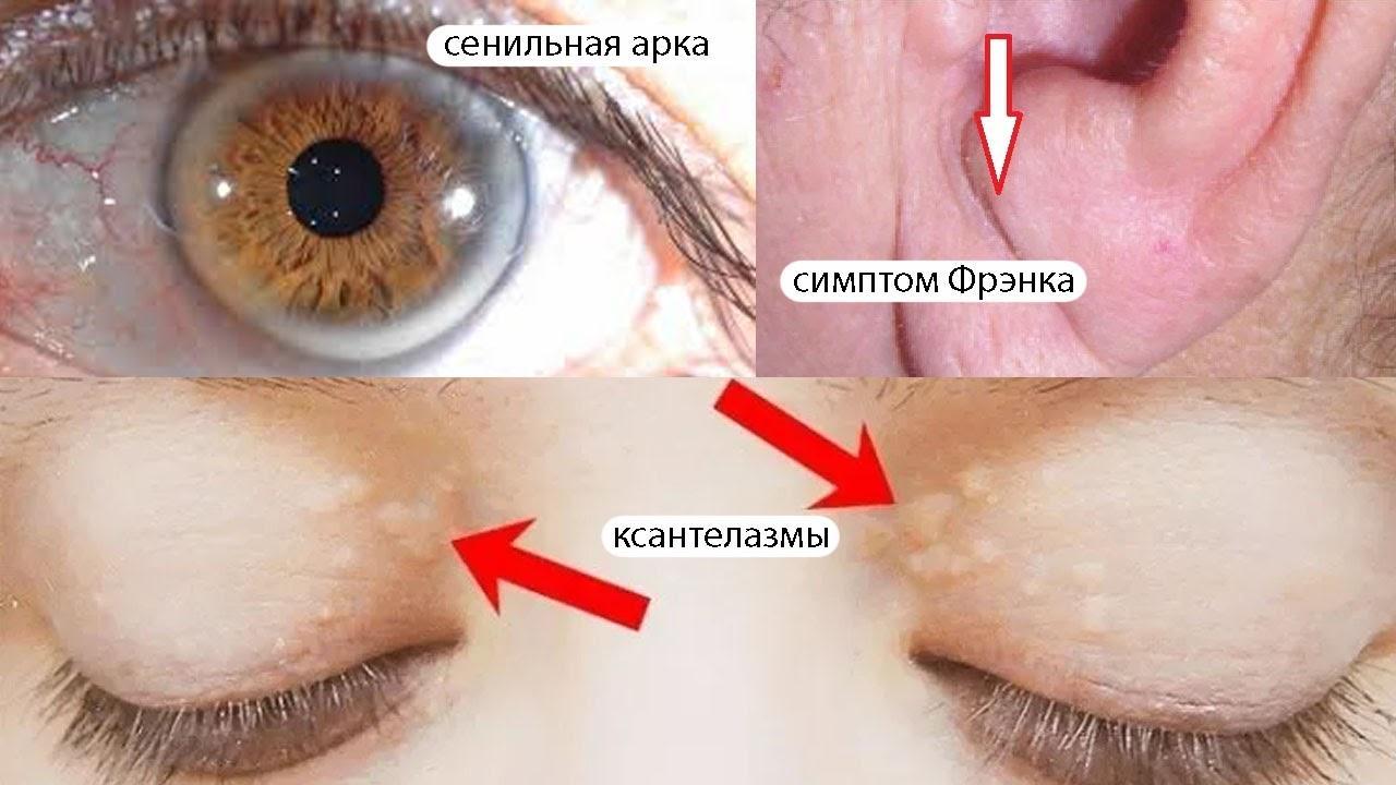 Какие факторы риска болезней сердца можно увидеть невооруженным глазом