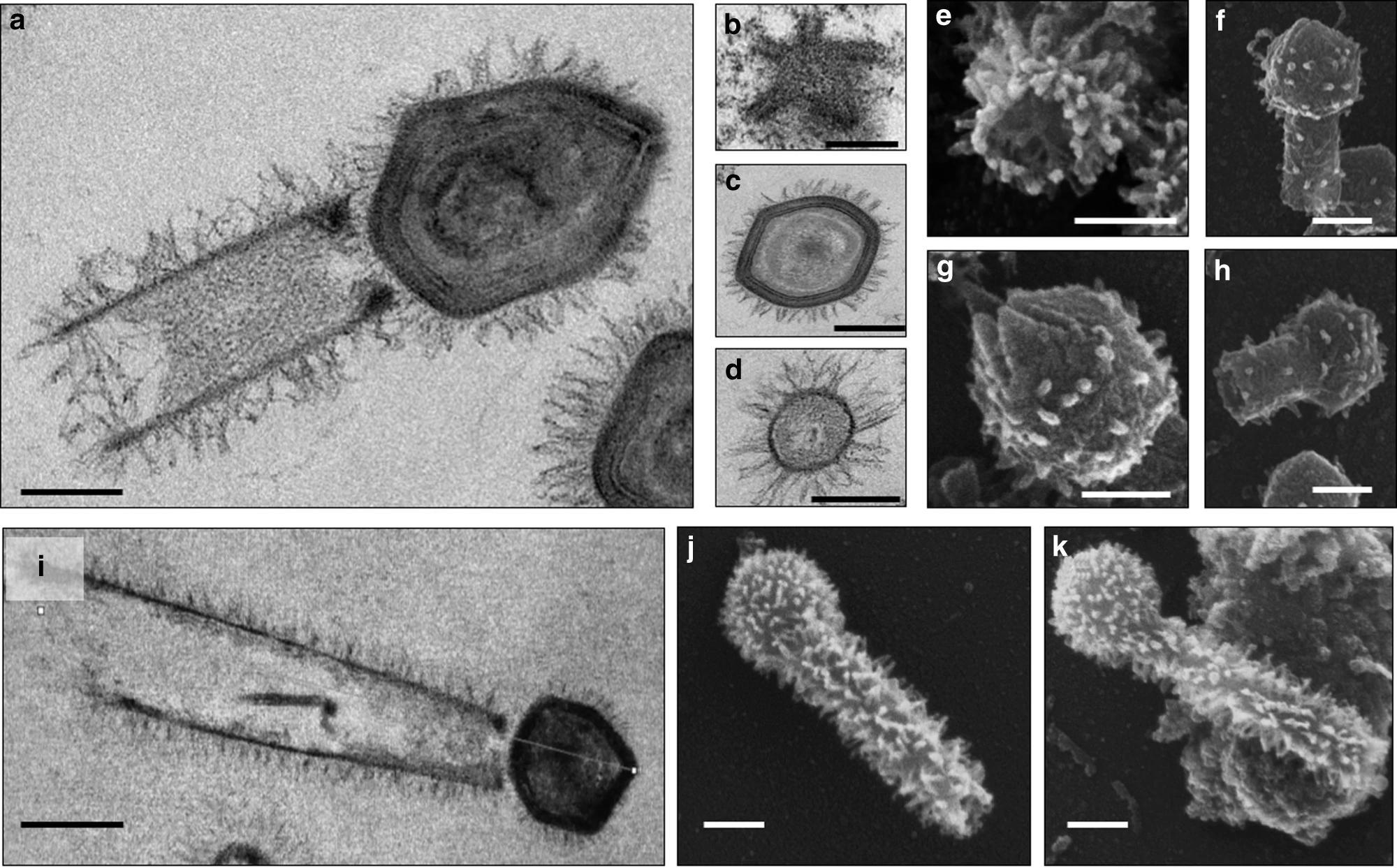 Тупанвирусы оказались обладателями гигантского «хвоста» и рекордно большого аппарата трансляции
