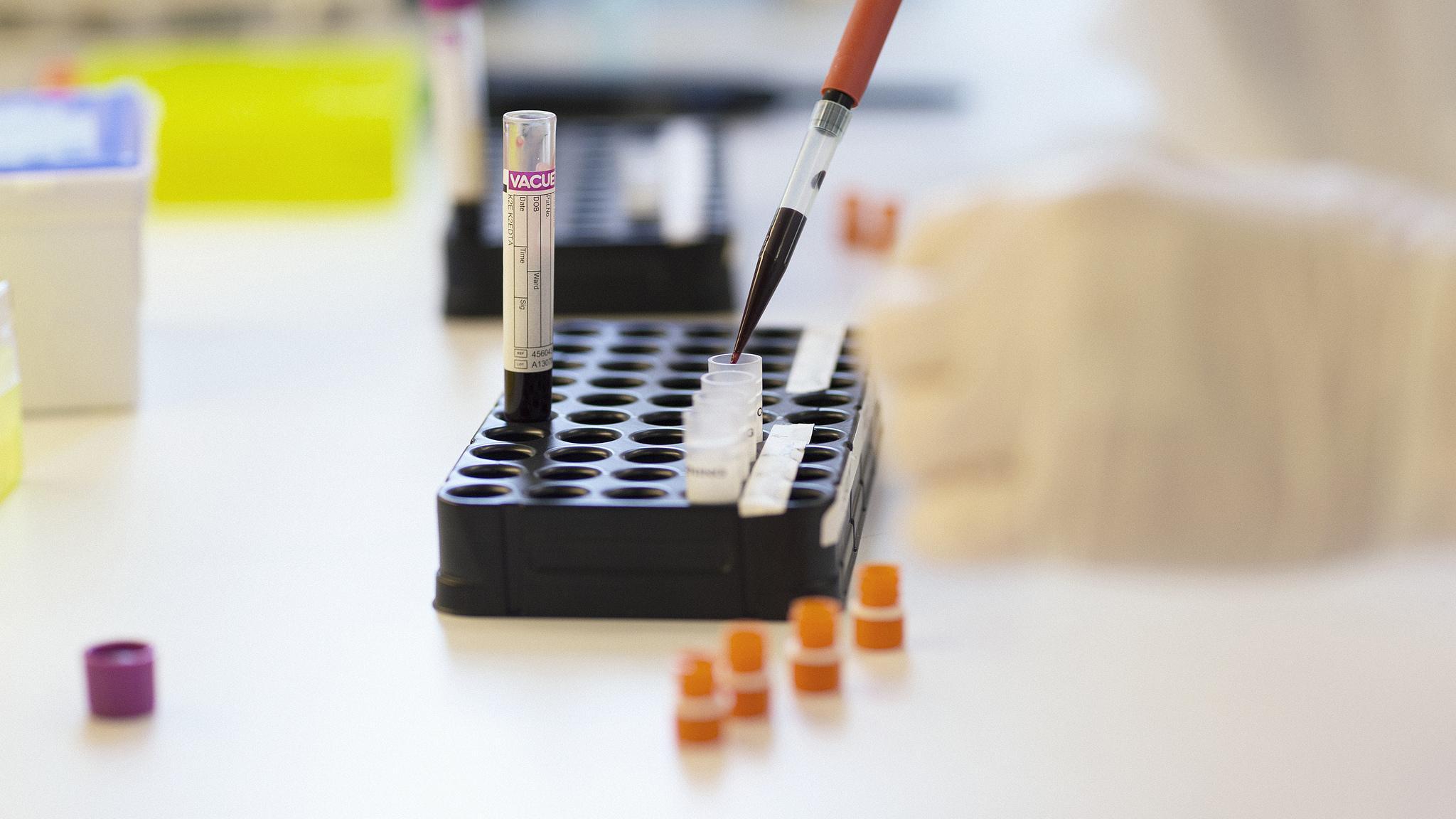 Антитела к SARS-CoV-2 нашли у никогда не заражавшихся им людей