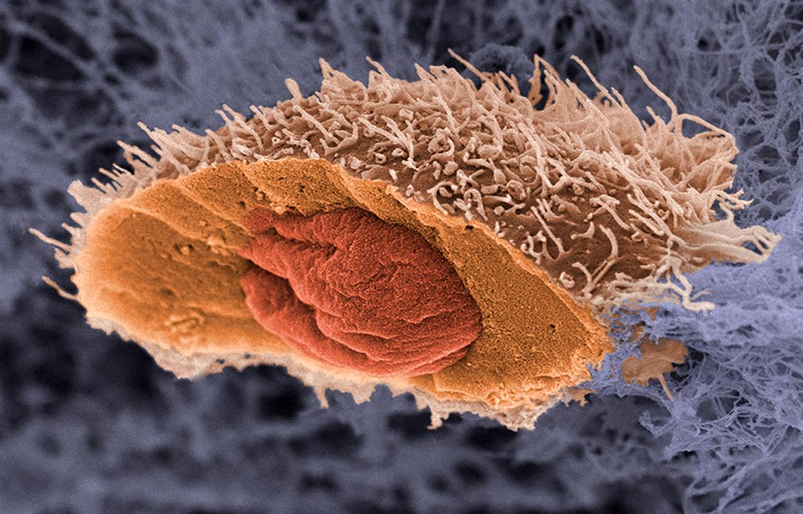 Два ключевых фактора сделали здоровые клетки раковыми