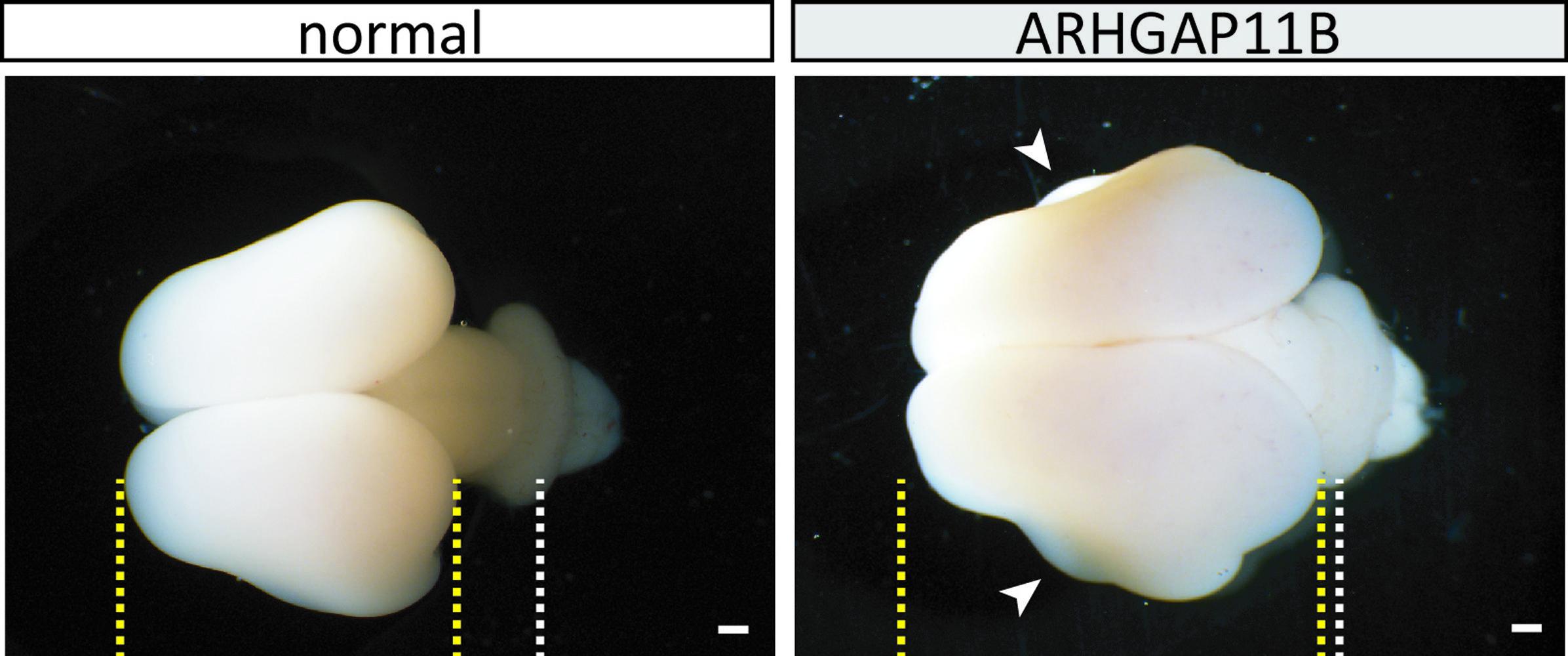 Найден специфичный для человека ген, отвечающий за структуру коры человеческого мозга