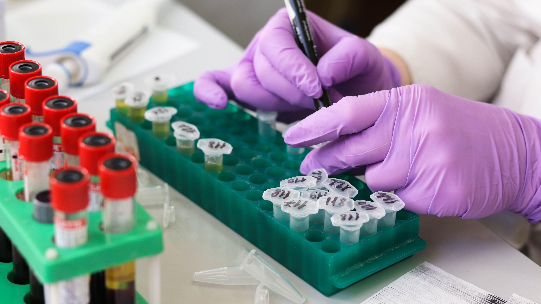 Исследование антител указало на возможность разработки вакцины против всех коронавирусов