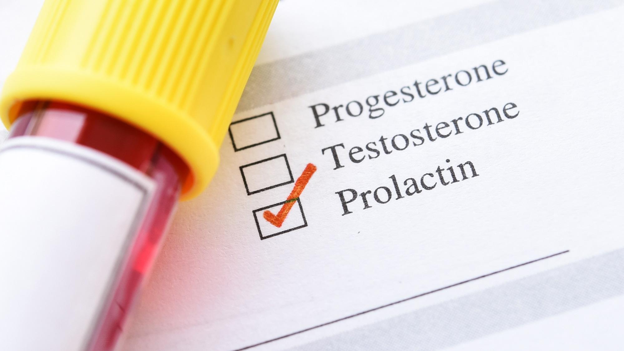 Как снизить пролактин в организме