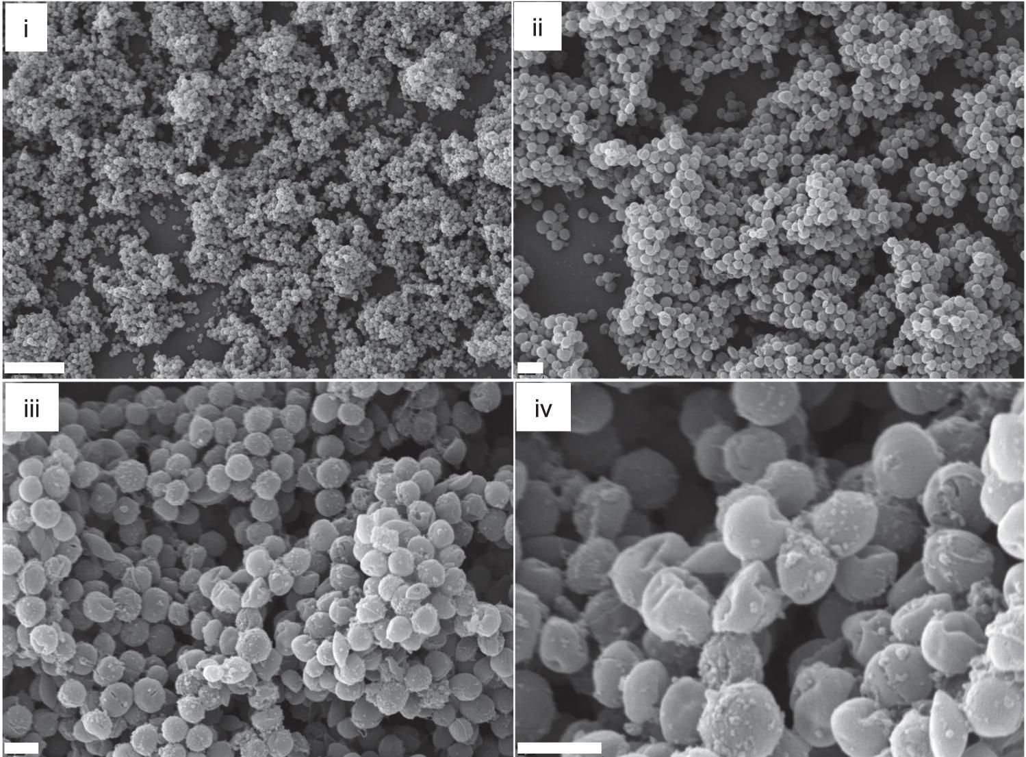 Оружие против MRSA нашли в других бактериях