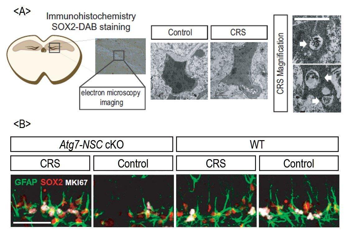 Как стресс заставляет гиппокамп пожирать свои клетки
