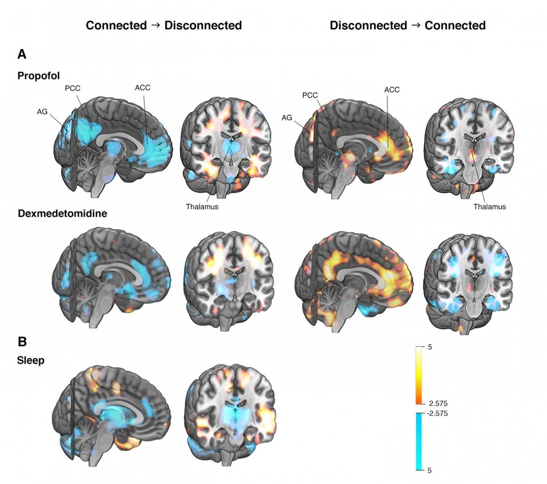 Обнаружена мозговая сеть управляющая сознанием