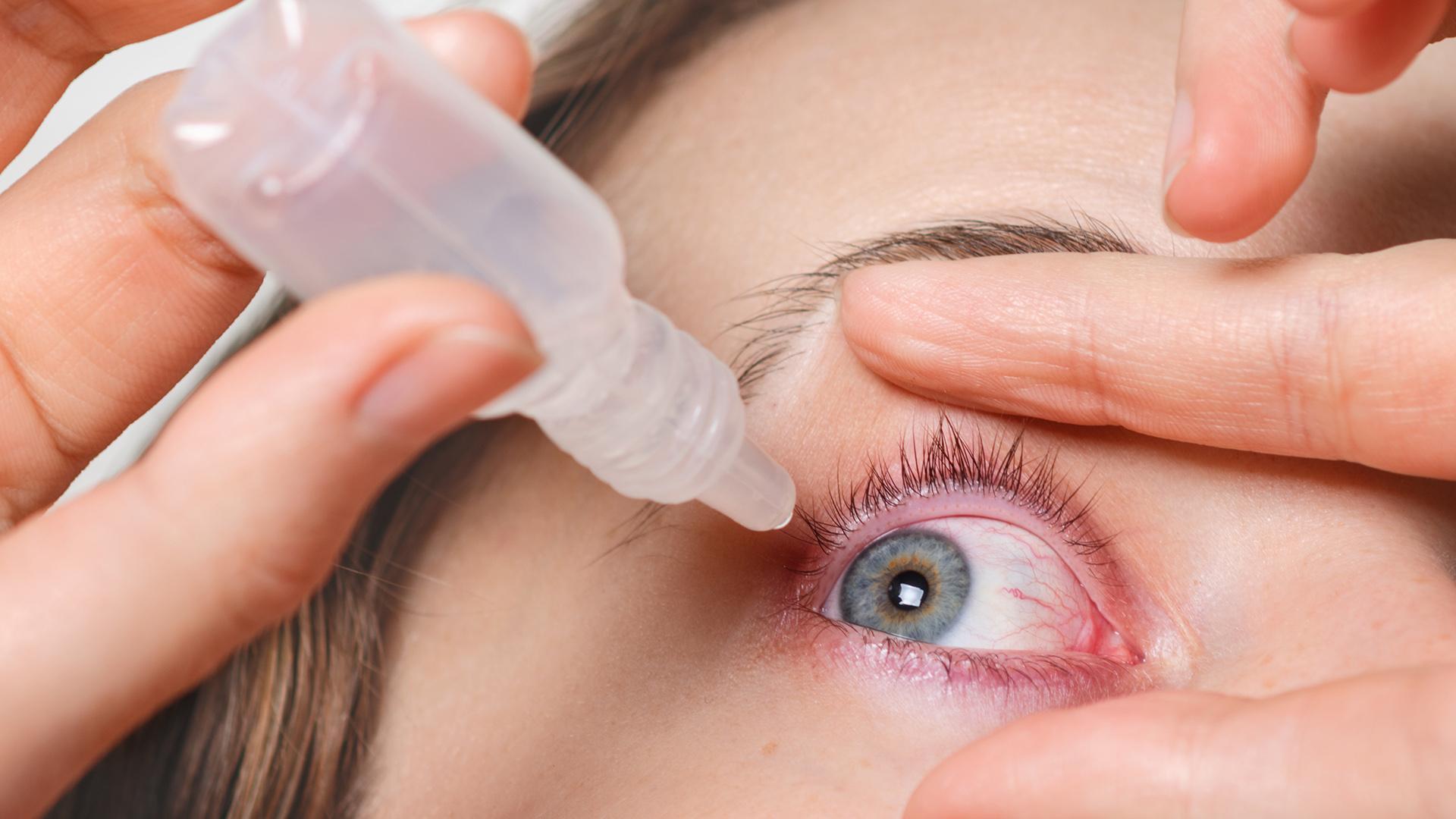 Зудит и режет: как распознать синдром сухого глаза?