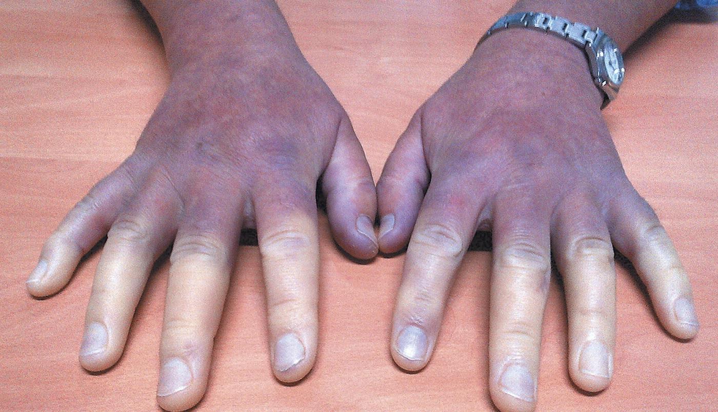 Доктор, у меня пальцы синие: как распознать болезнь Рейно