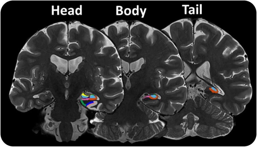 Развитие болезни Альцгеймера предскажет ускоренное долговременное забывание