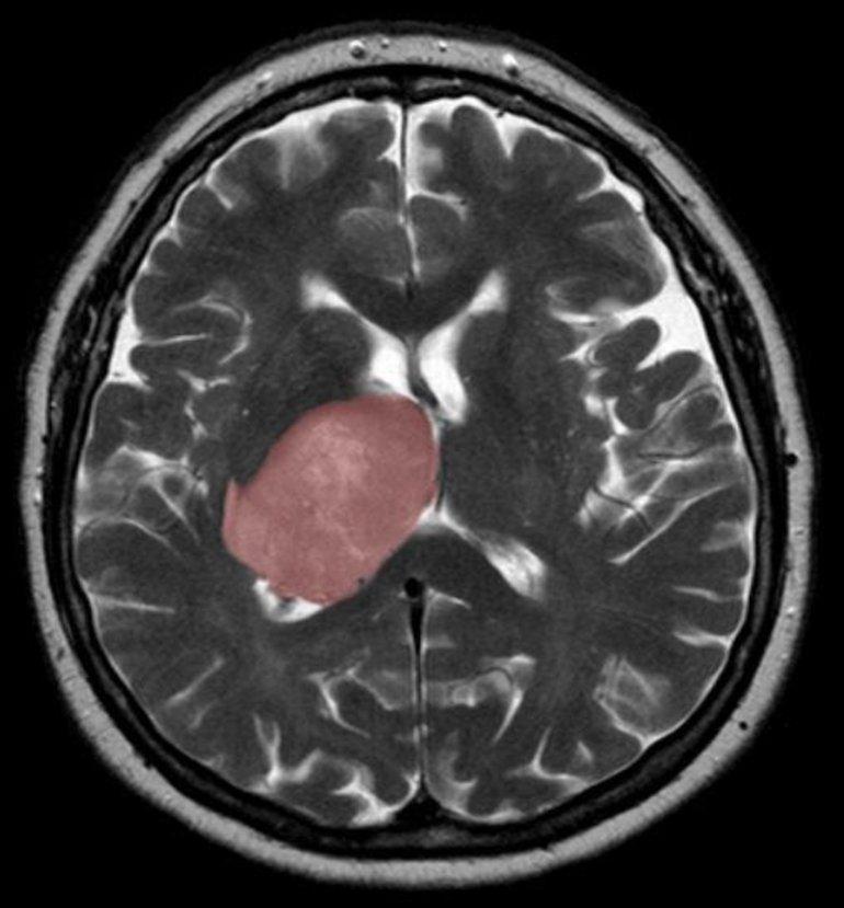 Неправильное заживление тканей стимулировало рак