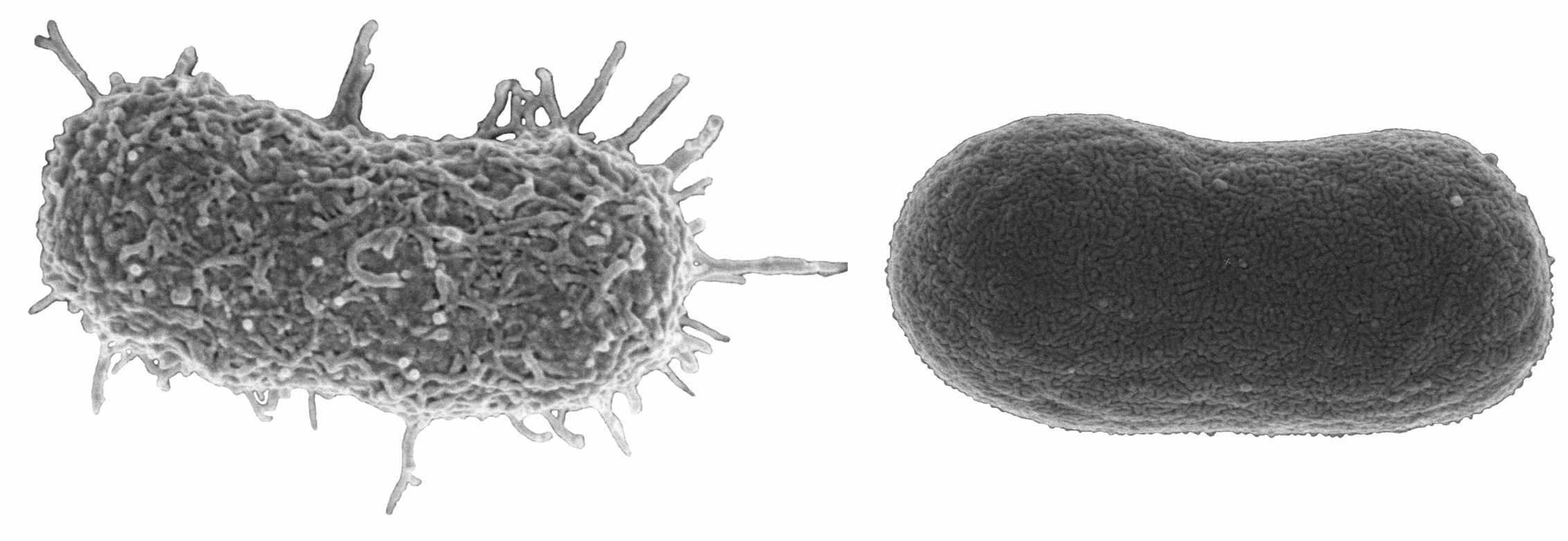 Попытка защититься от бактериофагов вернула бактерии чувствительность к антибиотикам