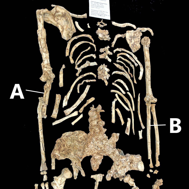 «Маленькой ноге» разрешили иметь изогнутые кости предплечья без травм