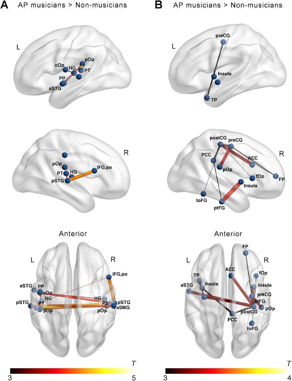 Мозг музыкантов оказался более развит, чем у обычных людей