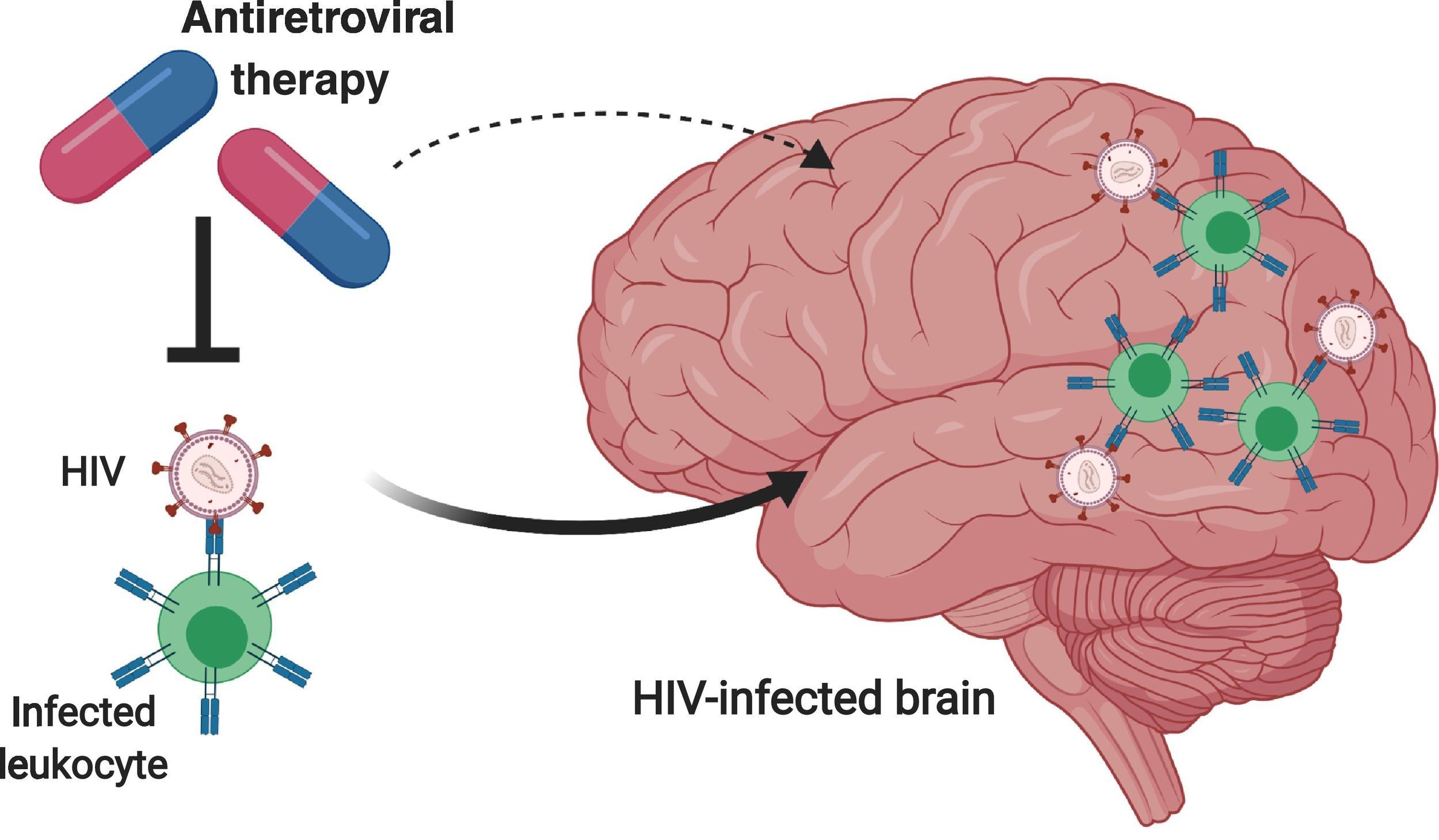 У пациентов с ВИЧ обнаружили уменьшение отделов мозга, отвечающих за память и поведение