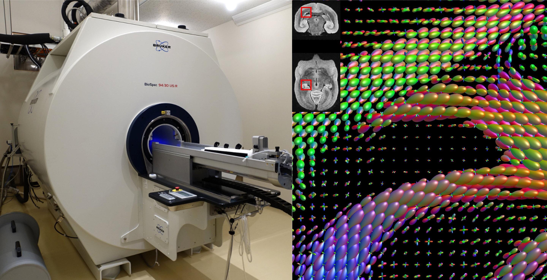 Искусственный интеллект улучшит изучение нейронных связей мозга