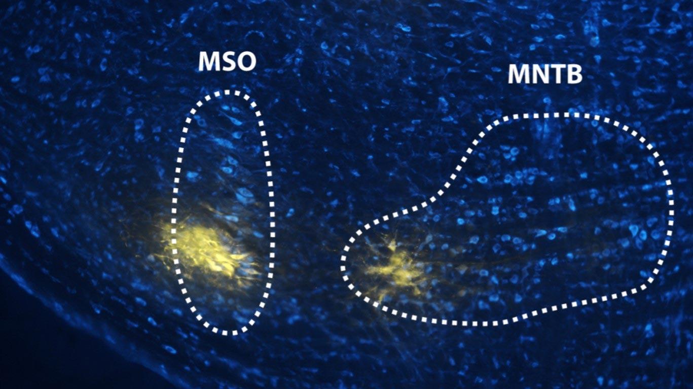 Как мозг различает тональные и шумовые сигналы