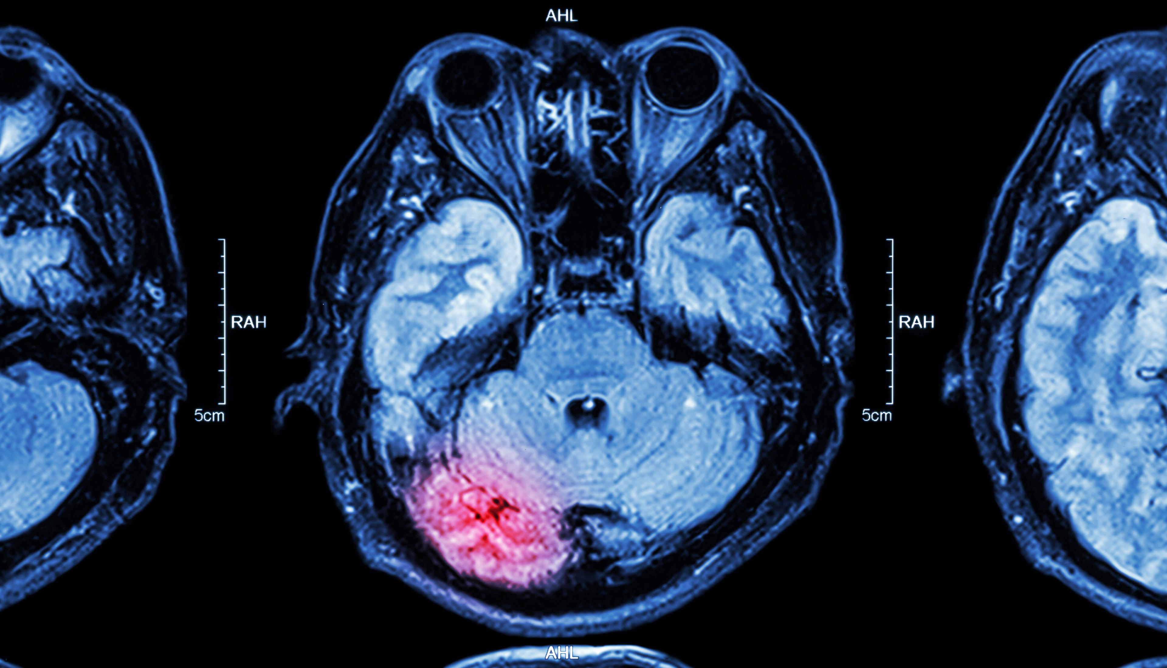 Наночастицы доставили лекарства через неповреждённый гемато-энцефалический барьер