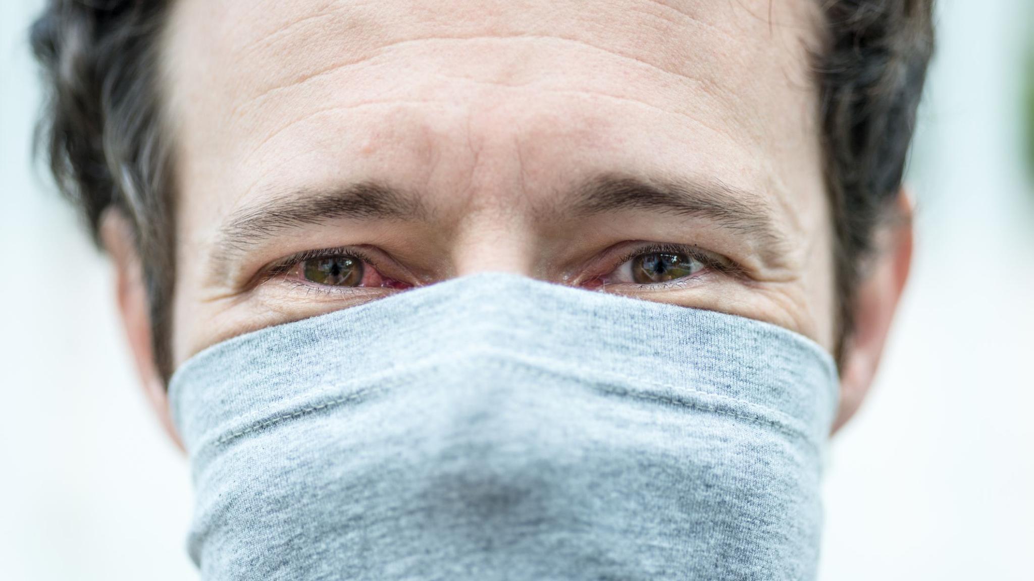Медики определили основные «глазные симптомы» коронавирусной инфекции