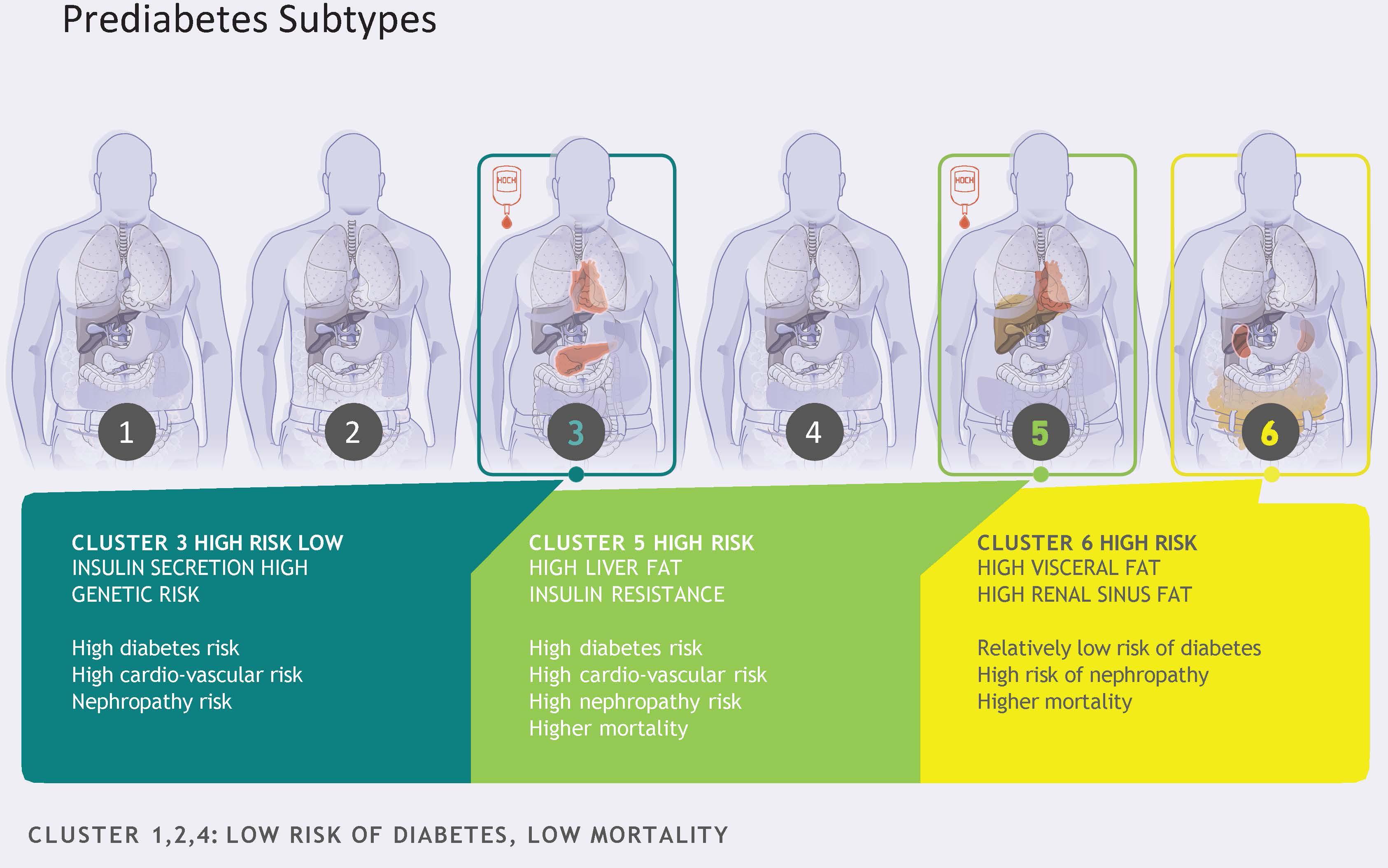 Предиабет разделили на шесть типов