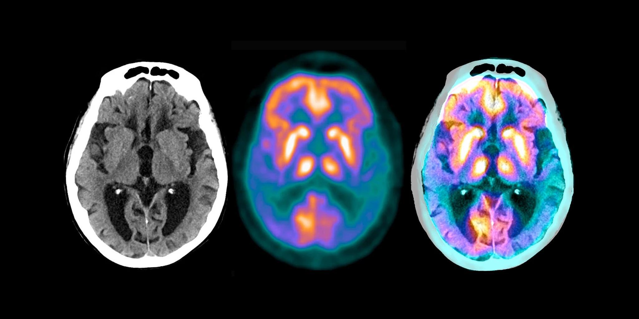 Новый препарат от болезни Альцгеймера продемонстрировал обнадеживающие результаты