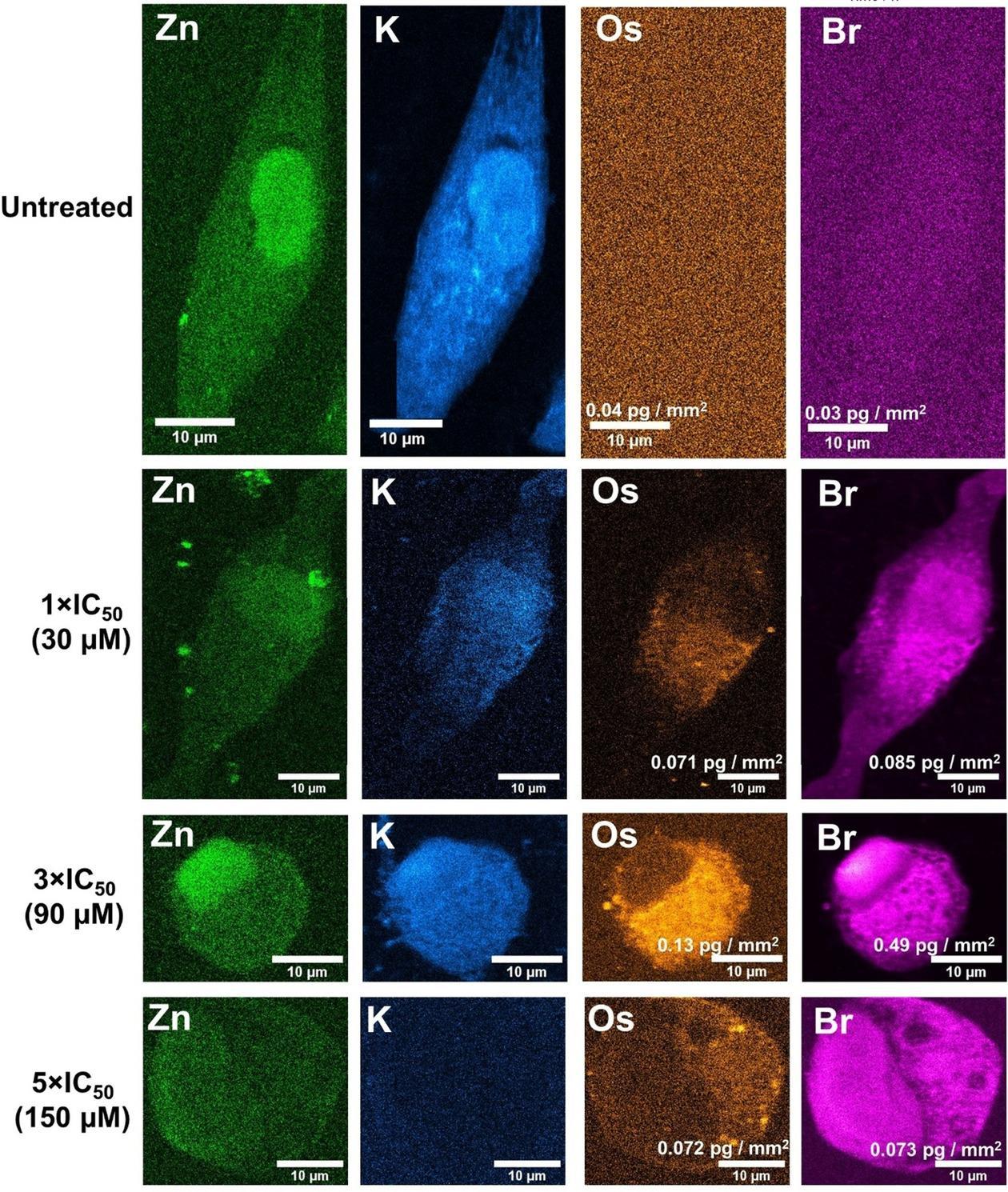 Ученые впервые заглянули внутрь раковой клетки и наблюдали в ней реакции соединений осмия