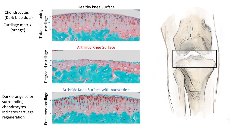 Пароксетин остановил разрушение хрящей при остеоартрите
