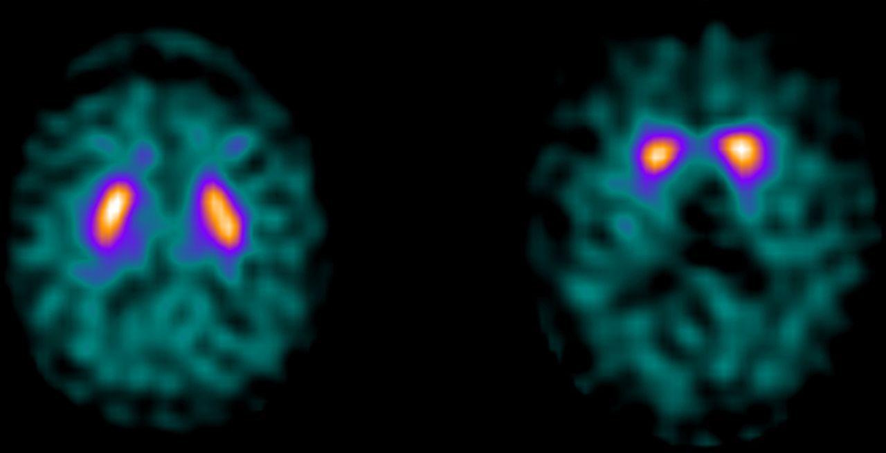 Фотоны помогут различить самые частые типы нейродегенераций