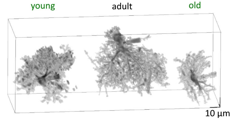 Ключ к старению мозга – в астроцитах?