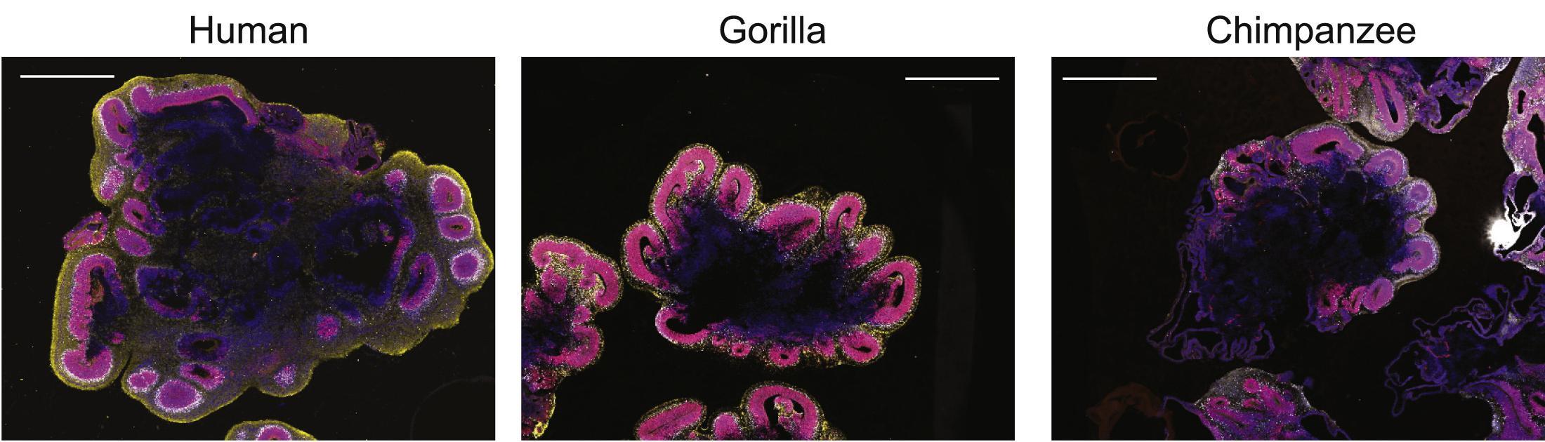 Модель показала, почему мозг человека больше, чем у обезьян