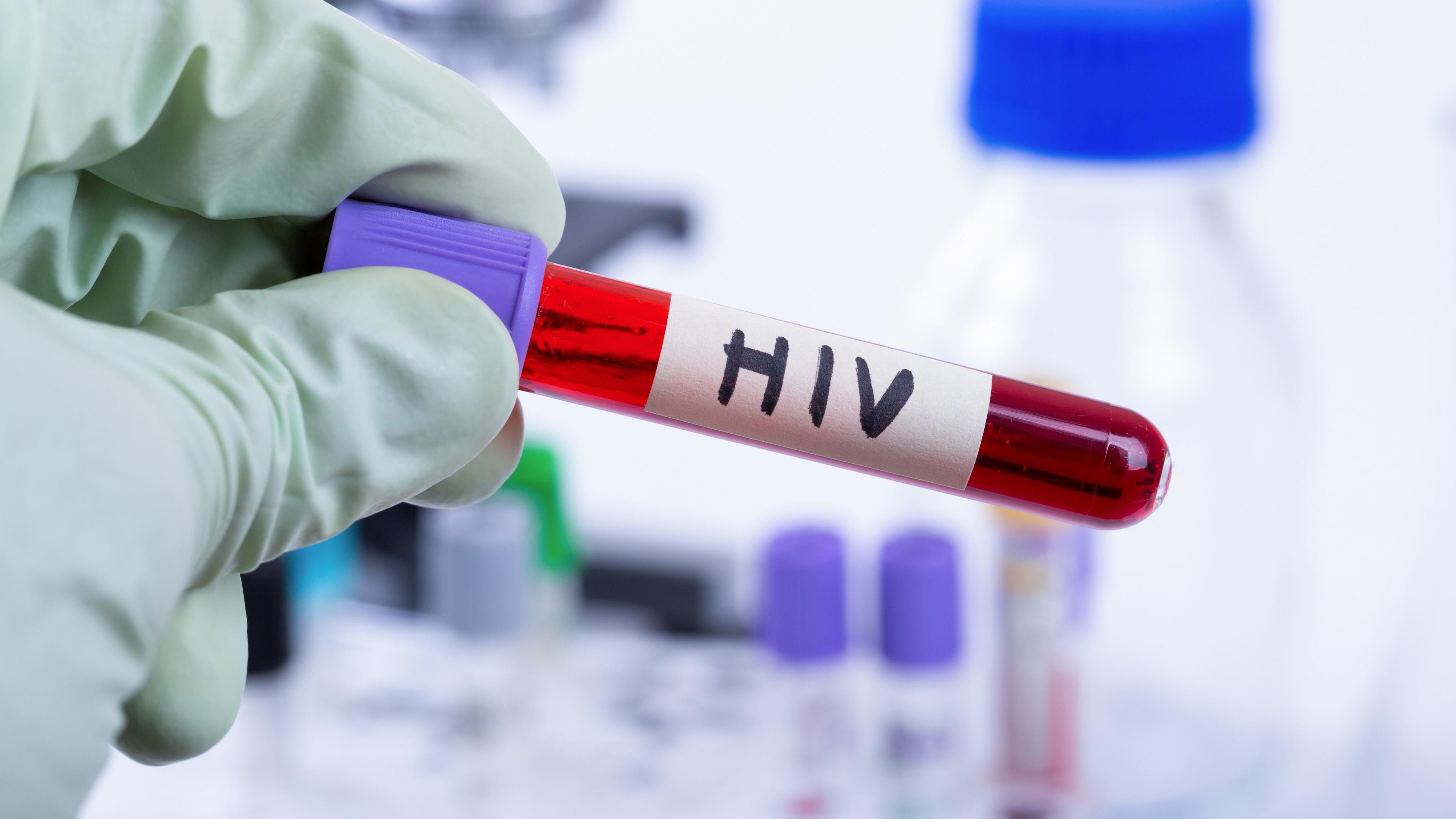 Ученые обнаружили большую группу устойчивых к ВИЧ-инфекции людей