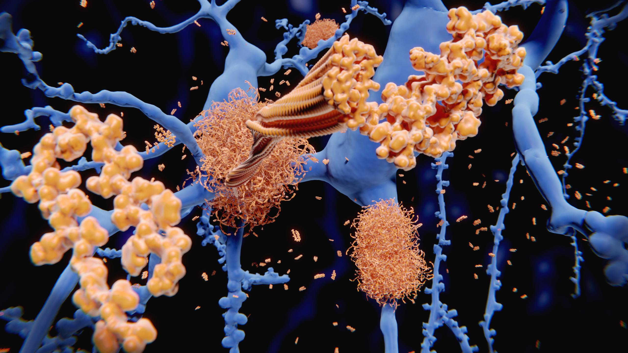 Нейрофизиологи описали механизм образования бета-амилоида под влиянием холестерина