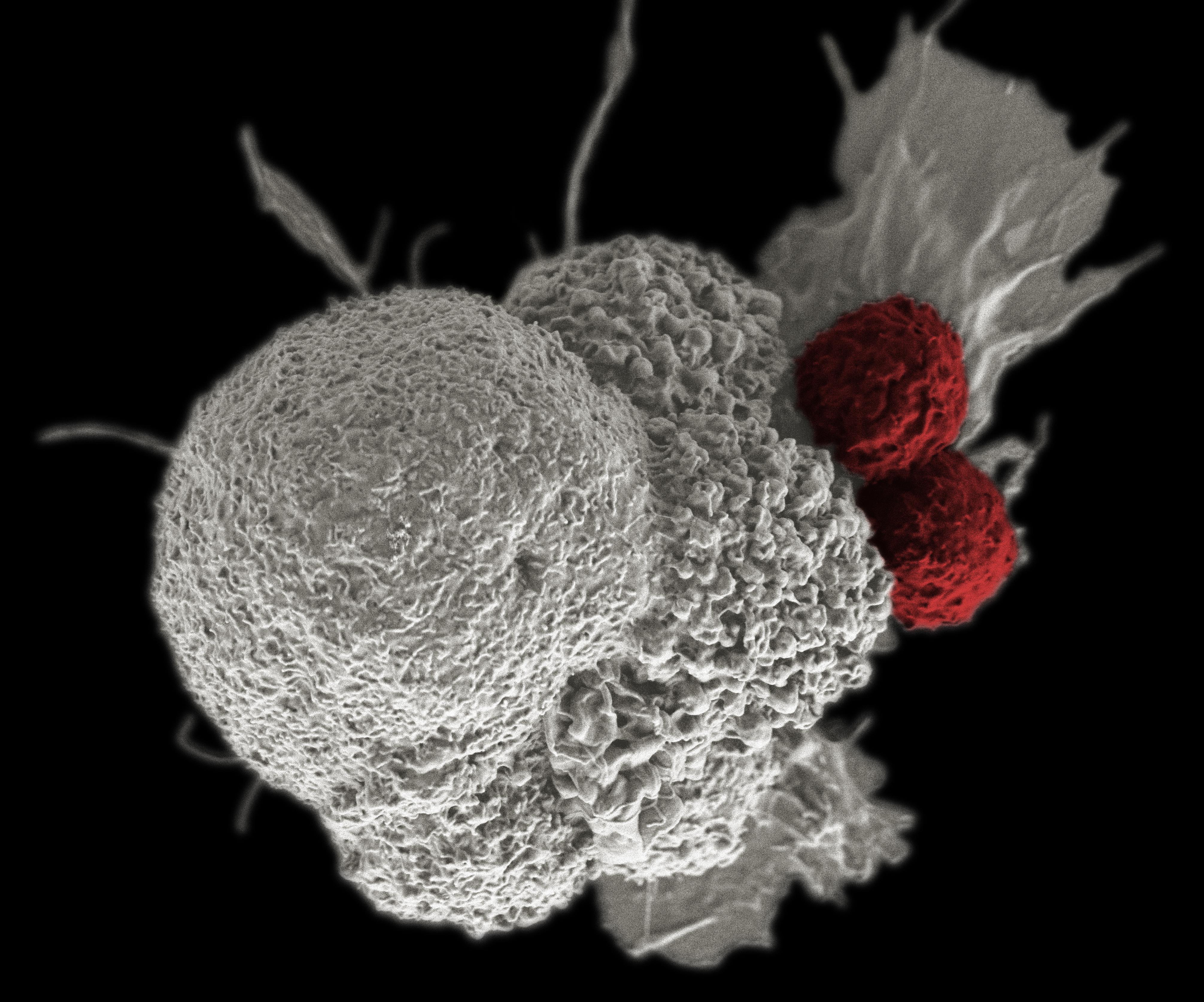 Антидепрессант помогает иммунитету бороться с раком